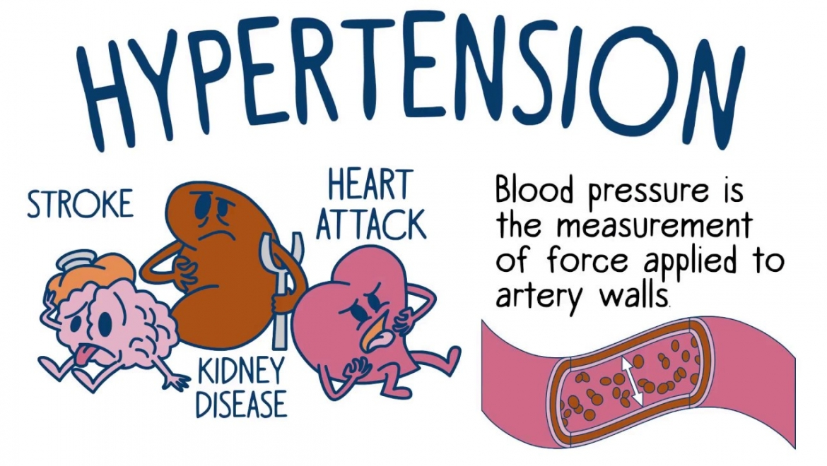 Hypertension – Family Risk and What You Should Know
